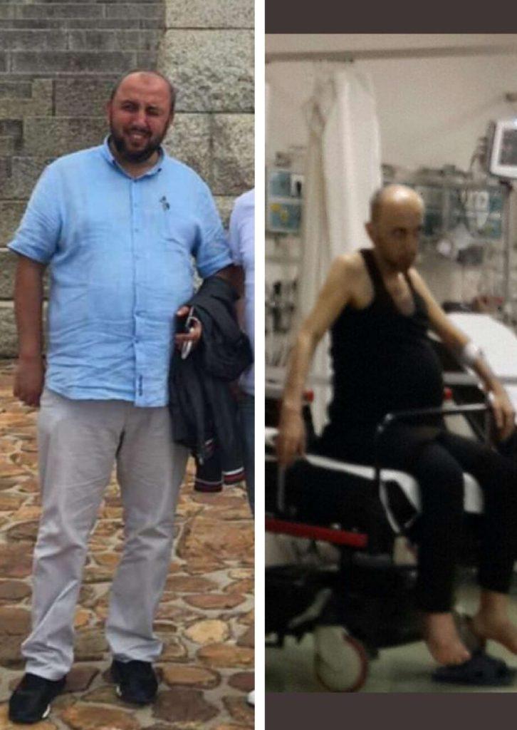 Engin Erol, 130 kilo girdiği cezaevinden bir deri bir kemik halde çıktı.